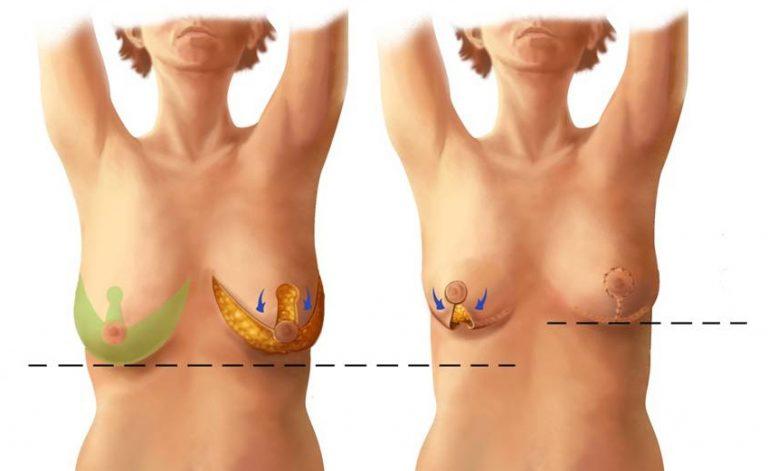 вертикальный метод подтяжки груди