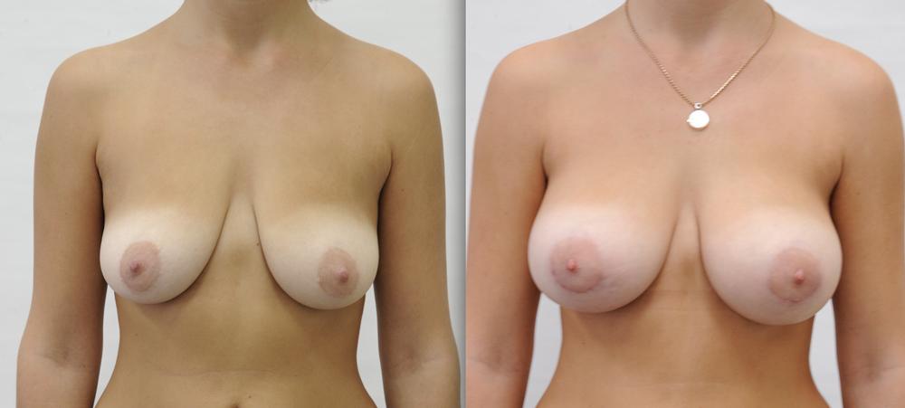 Обвисшая силиконовая грудь фото, секс видео а может не надо