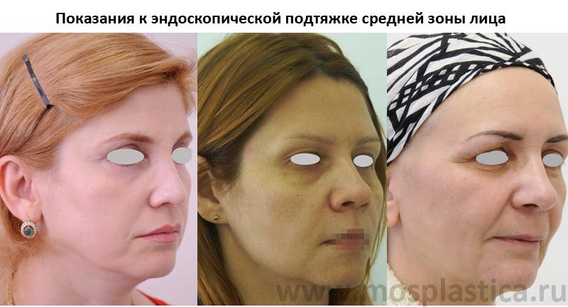 Эндоскопическая подтяжка средней зоны лица