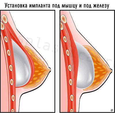 Вариант установки импланта - под мышцу и под железу