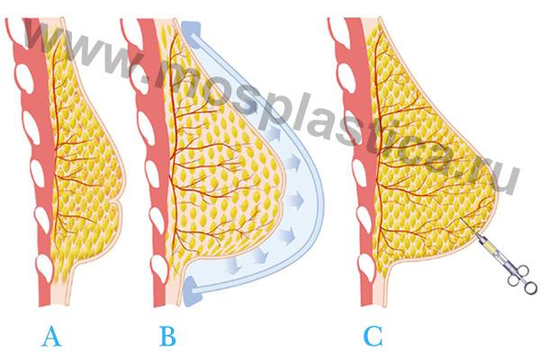 увеличение груди с помощью жира
