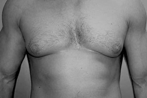 фото до гинекомастии