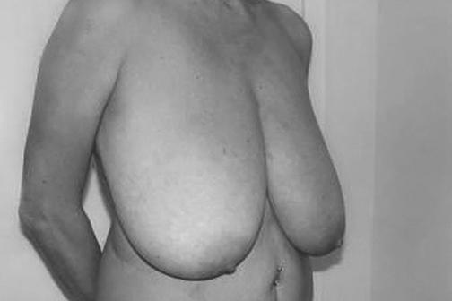 фото до операции уменьшения груди